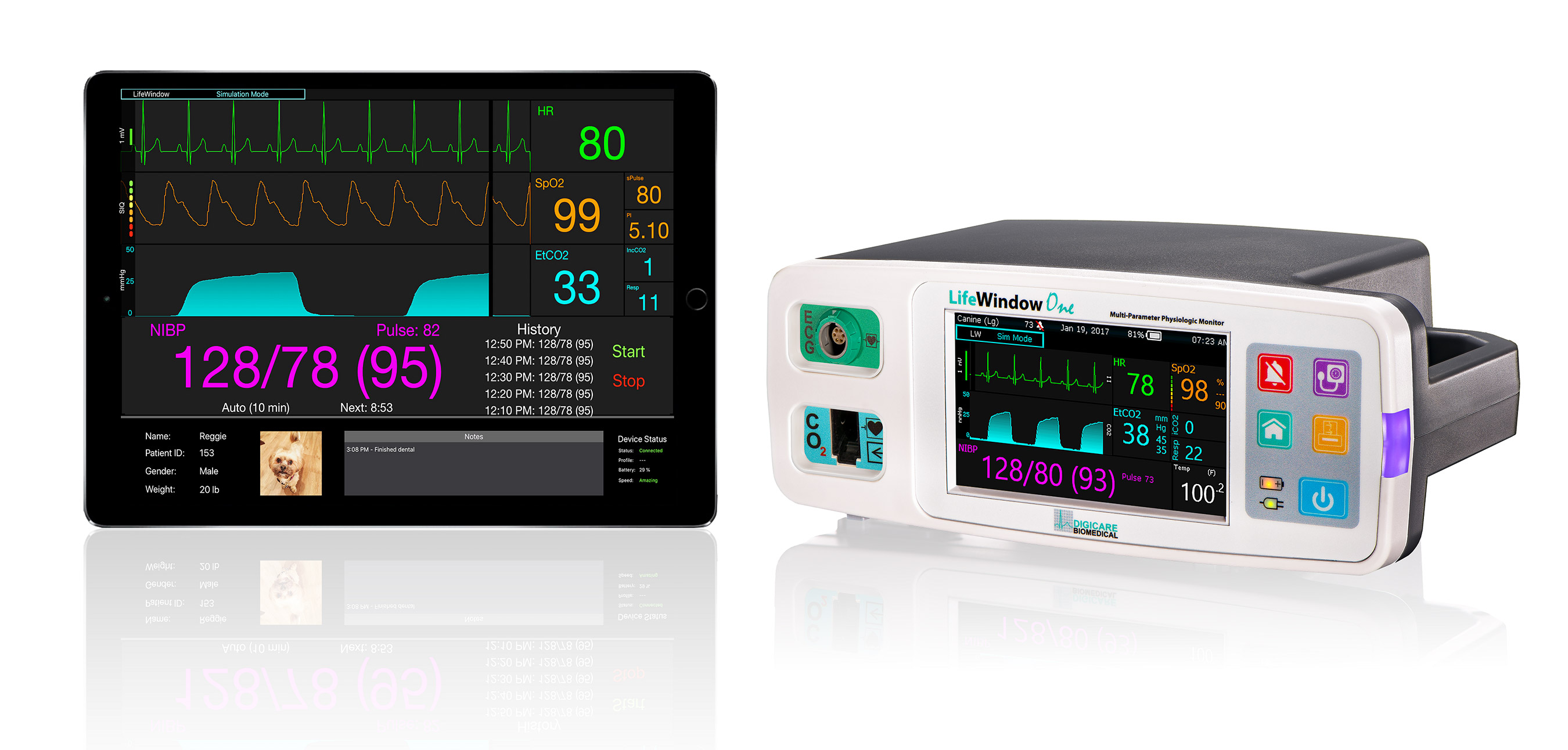 LifeWindow One Premium Patient Monitor
