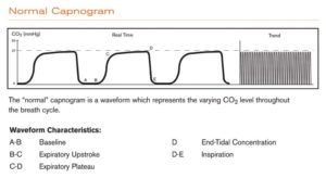 Figures Courtesy Respironics Inc. (2005). Capnography Reference Handbook. Retried from BIT.LY/2X2G8DG.