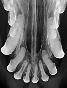 An incidental finding of a nonvital tooth (#102) as evidenced by an inappropriately wide canal. Nonvital teeth should be extracted or endodontically treated.