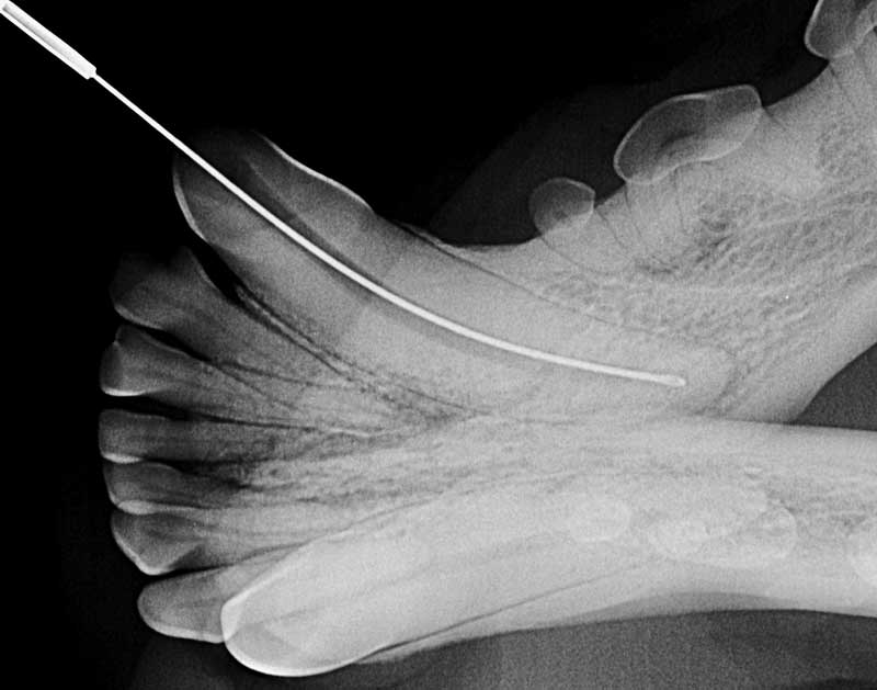 Figure 1: Intraoperative radiograph of a rotary file being used in the left mandibular canine tooth (# 304) during the instrumentation stage of an orthograde root canal therapy.