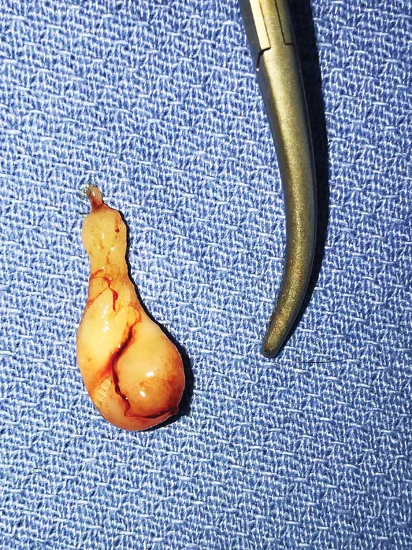 Figure 2: The nasopharyngeal polyp after removal.
