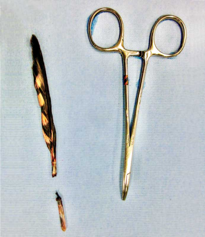 Figure 1: A broken blood feather is shown, with the larger feather shaft that was broken off and the smaller base of the feather which was removed with the hemostats shown. Note the rounded proximal aspect of the base of the feather, which indicates the complete feather has been removed. Photos courtesy Olivia Petritz