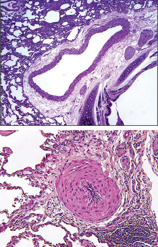 A normal pulmonary artery (top) and a pulmonary arteriole with occlusive medial hypertrophy (bottom).