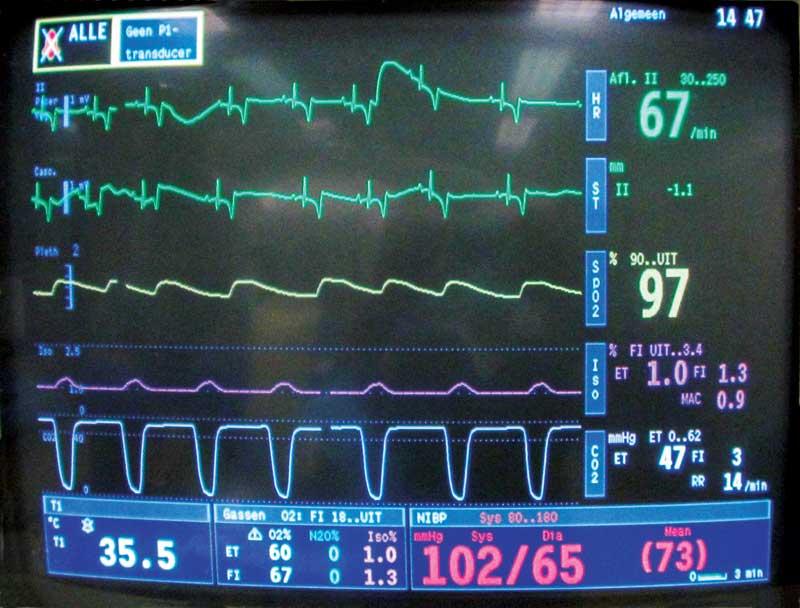 Presentation: You monitor a dog's CO2 during anesthesia. Photo courtesy Phil Zeltzman